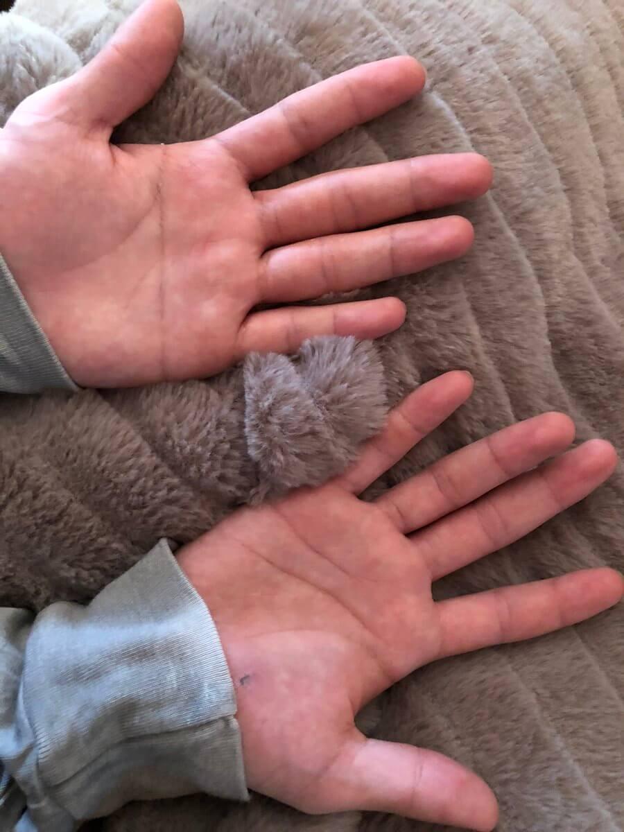 宇野樹「昌磨の手はどっちでしょう?綺麗な手が昌磨です。 」