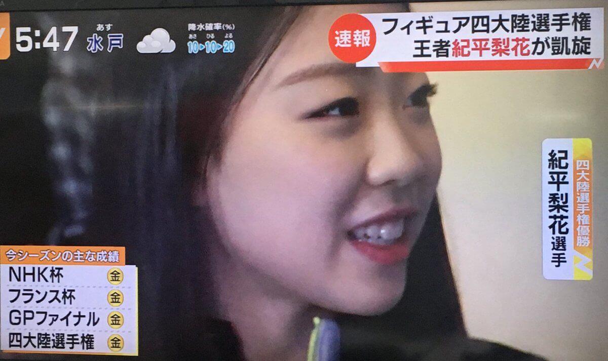 宇野昌磨と紀平梨花に白血病公表の池江璃花子選手の質問にファンは疑問視。